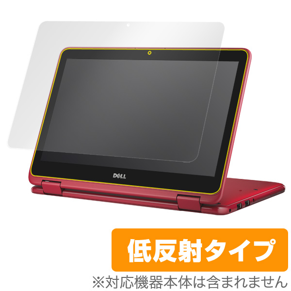 OverLay Plus for Inspiron 11 3000シリーズ 2-in-1 (2016年モデル)