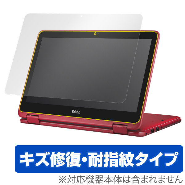 OverLay Magic for Inspiron 11 3000シリーズ 2-in-1 (2016年モデル)