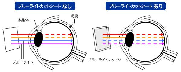 OverLay Eye Protector の詳細